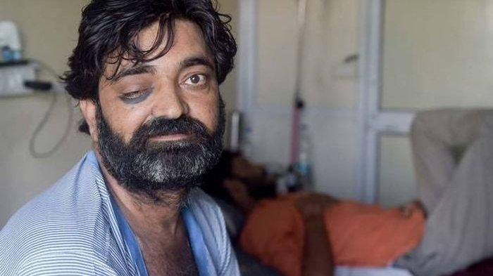Sudah 4.300 Orang Meninggal Akibat Jamur Hitam, Serang Pasien Baru Sembuh Bikin Dokter Khawatir