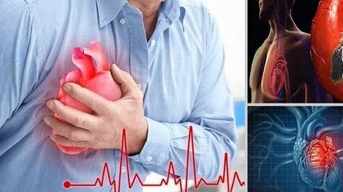 11 Tanda-tanda Seseorang Mengidap Penyakit Jantung, Segera Periksakan Diri ke Dokter