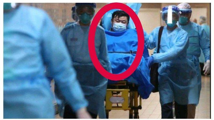 PENYEBAB Pria Lebih Mudah Tertular Virus Corona daripada Wanita, Terbukti di China