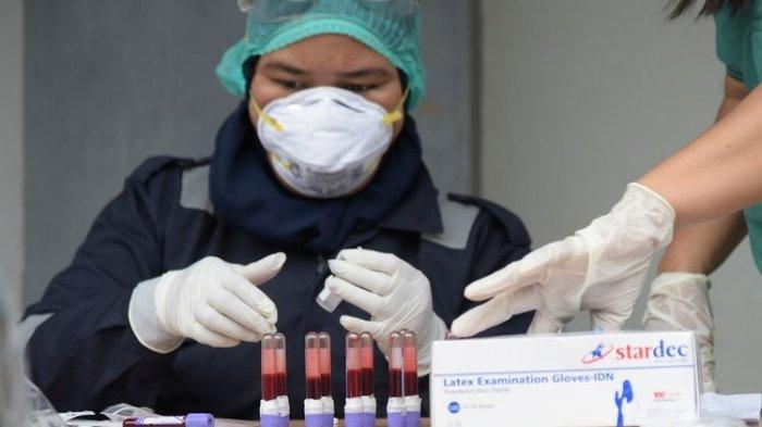 Di Mana Rapid Test Antigen di Sulsel dan Makassar? Berapa Biayanya? Syarat Naik Pesawat Saat Ini