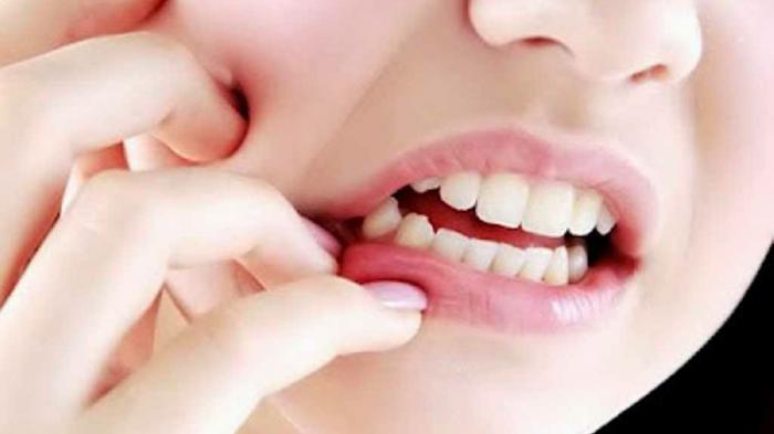 Cara Mengobati Sakit Gigi Alami dan Ampuh Sebelum ke Dokter, Gunakan Enam Obat Sakit Gigi Ini
