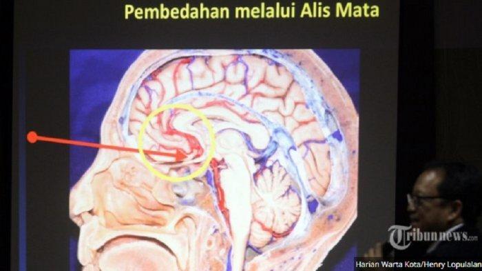 TERNYATA Ini Penyebab Tumor Otak yang Berpotensi Jadi Kanker, Penyakit Diderita Agung Hercules