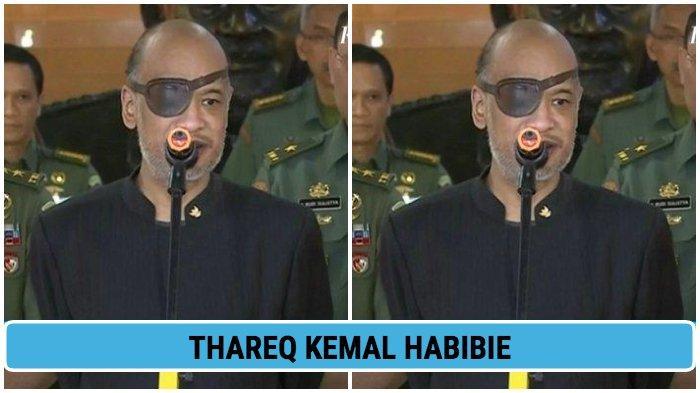 Thareq Kemal Habibie Blak-blakan Kenapa Derita Glaukoma, Pakai Penutup Mata Bak Nick Fury Avengers