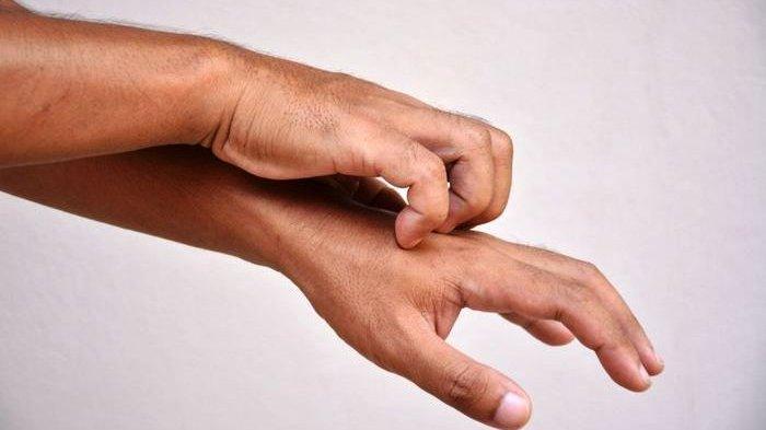 Waspada Jika Rasakan Gatal-gatal di Kulit, Bisa Jadi Alami Kanker Hati, Simak Tanda-tanda Lainnya