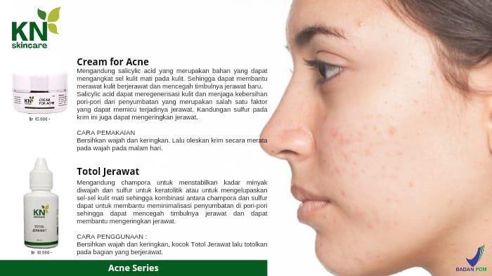 Kandungan Cream For Acne dan Totol Jerawat by KN Skincare