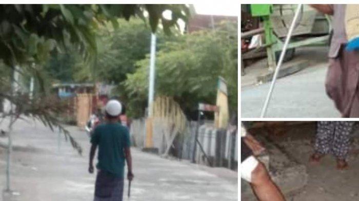 Waspada Anjing Gila di Desa Pambusuang Polman, Sudah 5 Korban
