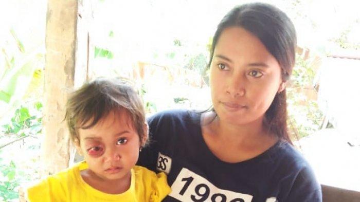 Yuk, Bantu Adik Winarta, Balita di Toraja Penderita Tumor Mata