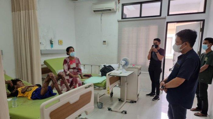 Dibantu Komjen (Purn) Syafruddin, Saldi Remaja Penderita Kanker Kulit Akhirnya Sembuh