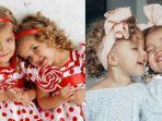 ilustrsi-bayi-kembar-kumpulan-nama-bayi-perempaun-islami-rendah-hati.jpg