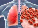 ketahui-penyebab-gejala-jenis-hingga-pengobatan-penyakit-pneumonia-yang-hebohkan-china.jpg