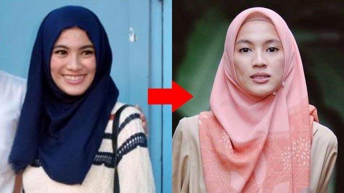 Lama Tak Muncul Kondisi Alyssa Soebandono Kini Jadi Sorotan, Netizen Pertanyakan Bentuk Tubuhnya