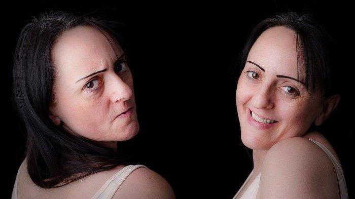 Apa itu Bipolar Disorder? Gangguan Mental yang Diidap oleh Marshanda, Ini Gejala dan Penyebabnya