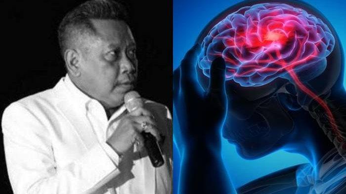 Apa Itu Pendarahan Otak yang Dialami Tukul Arwana? Ini Penyebab dan Gejala yang Harus Diwaspadai