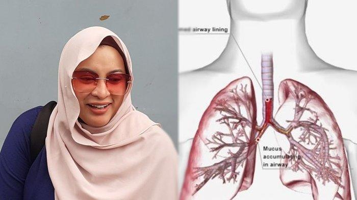 Apa Itu Pneumonia? Penyakit yang Diderita Jane Shalimar Sebelum Meninggal, Berikut Gejalanya
