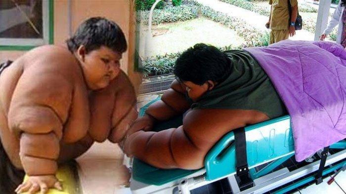Arya Permana, Bocah Berbobot 192 Kg Sempat Viral karena Obesitas, Beratnya Sekarang Tinggal Segini