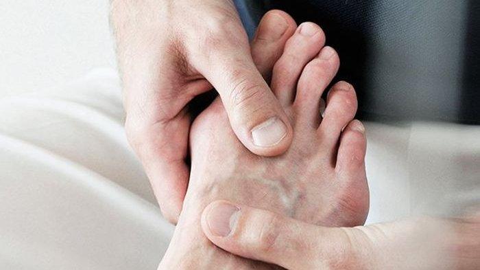 10 Cara Atasi Asam Urat dengan Tepat, Jangan Anggap Remeh Penyakit Ini, Lihat Selengkapnya