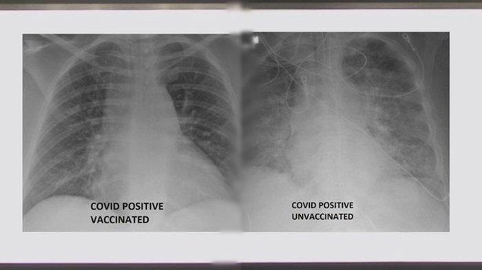 Begini Perbedaan Paru-paru Pasien Virus Corona yang Sudah Vaksin dan Belum