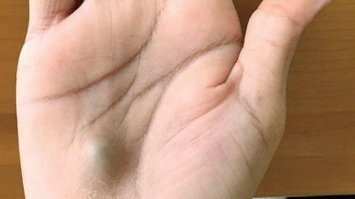 Berikut Gejala dan 5 Cara Pengobatan Jika Temukan Benjolan Atau Ganglion di Sekitar Tubuh