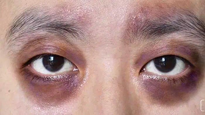 Cara Menghilangkan Mata Panda, Lakukan Kebiasaan hingga Pengobatan Ini