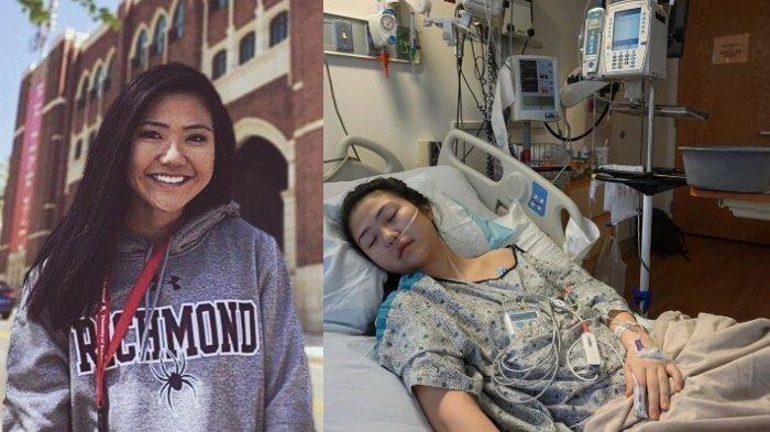 Gadis Remaja ini Mengaku Nyaris Meninggal Gara-gara Rokok Elektrik, Reaksi Ahli Paru-paru Berbeda