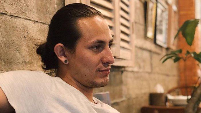 Dylan Carr Alami Mujizat Lolos dari Maut, Sempat Ditolak Rumah Sakit, Minta Maaf dan Ingin Tobat