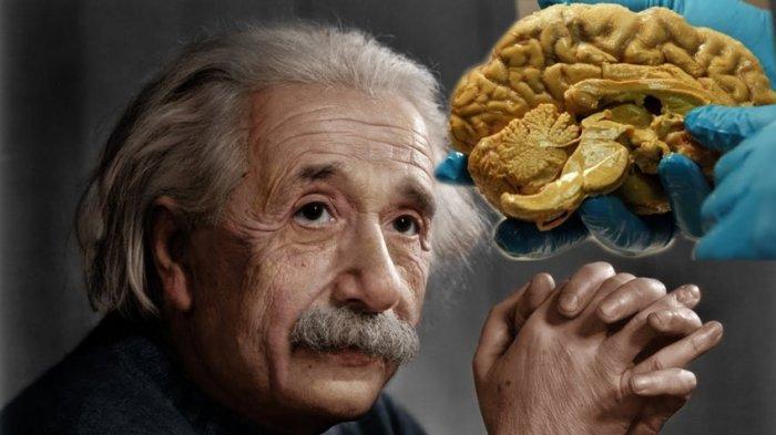 Berikut Ini 4 Kasus Pencurian Teraneh di Dunia, Termasuk Kasus Pencurian Otak Einstein