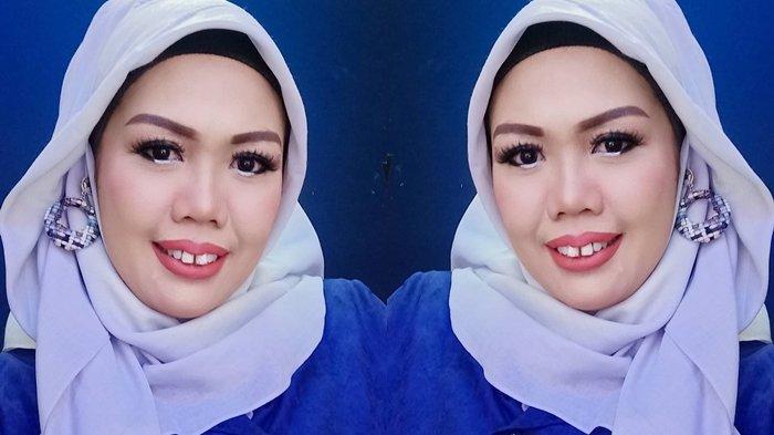 Elly Sugigi Tampil Beda Setelah Lakukan Perawatan Gigi: Udah Bisa Mingkem Dikit