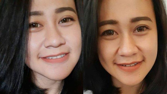 Sosok Eva Sofiana Wijayanti, Perawat Cantik Dibakar Hidup-hidup Pria Misterius, Disukai Banyak Orang