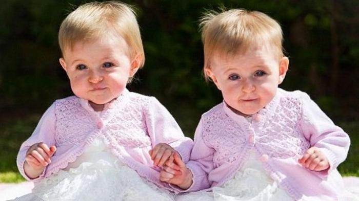 CARA Punya Anak Kembar, Ternyata Bisa Tanpa Garis Keturunan, Ini Jenis Makanan yang Harus Dikonsumsi
