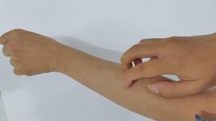 FOTO : Ilustrasi gatal. Inilah tanda-tanda penyakit diabetes.