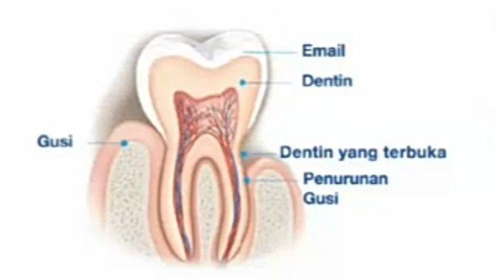Inilah Penyebab Gigi Terasa Ngilu, Berikut Penjelasan Ahli
