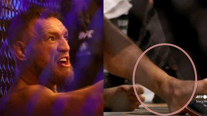 Hasil UFC 264: Dustin Poirier Pecundangi Conor McGregor, The Notorious Patah Pergelangan Kaki