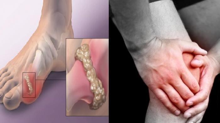 7 Komplikasi Penyakit Asam Urat, Bisa Sebabkan Batu Ginjal hingga Gagal Ginjal