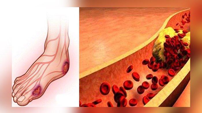 ilustrasi-diabetes-23626.jpg