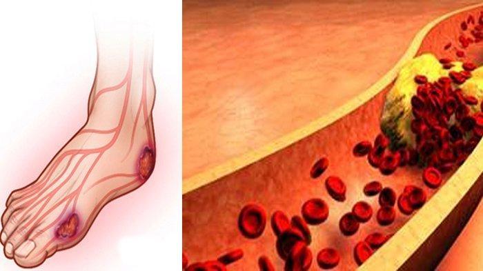 INFO Kesehatan Hari Ini, 12 Tanda Penyakit Diabetes di Tubuh, Simak Penjelasannya