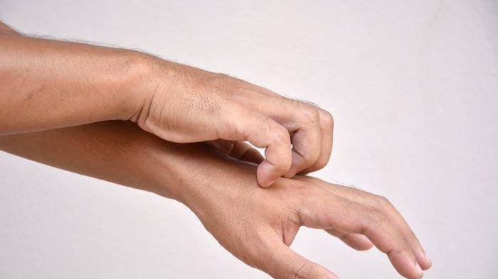 Info Kesehatan, Inilah Tanda Jika Tubuh Terkena Penyakit Diabetes, Muncul Ini di Kulit