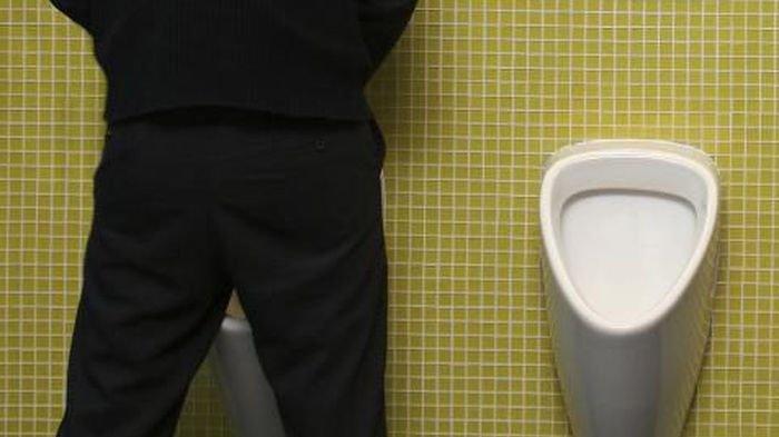 Hati-Hati Jika Warna Urine Sudah Merah Muda, Oranye, Cokelat atau Hijau, Bisa Saja Ada Penyakit