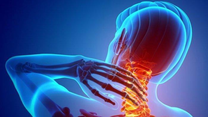 Atasi Sakit Leher Akibat Salah Posisi Tidur, Ada 4 Cara, Nomor 3 Pakai Es Batu dan Handuk