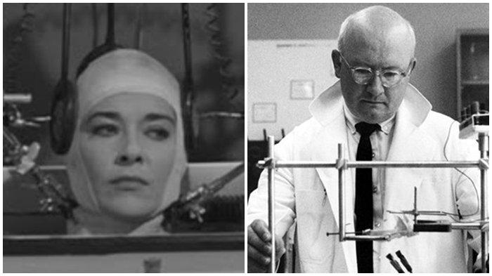 Transplantasi Kepala, Operasi Kontroversial Dalam Sejarah, Penelitian yang Dikecam Seluruh Dunia