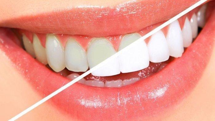 Menyikat Gigi Tidak Bisa Memutihkan, Ini Penjelasan Dokter