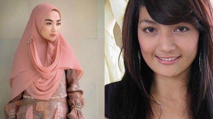 Ingat Imel Putri? Mantan Istri Sirajuddin Mahmud Divonis Kanker dan Covid 19, Ini Kabarnya Sekarang