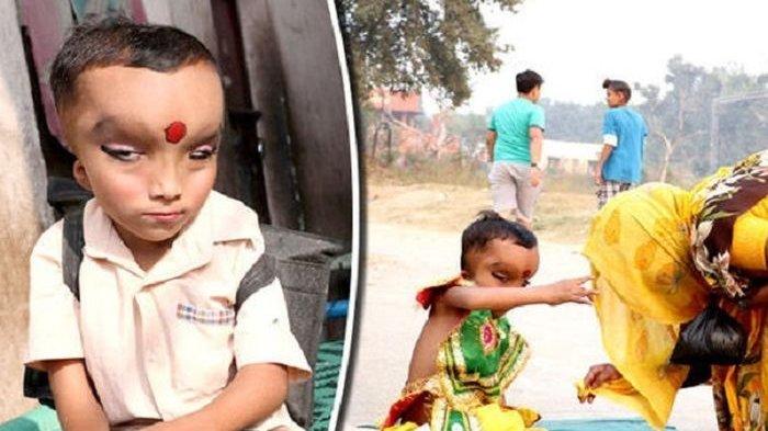 Miliki Kelainan Medis, Bocah Ini Disembah dan Dipuja, Dianggap Titisan Dewa Ganesha