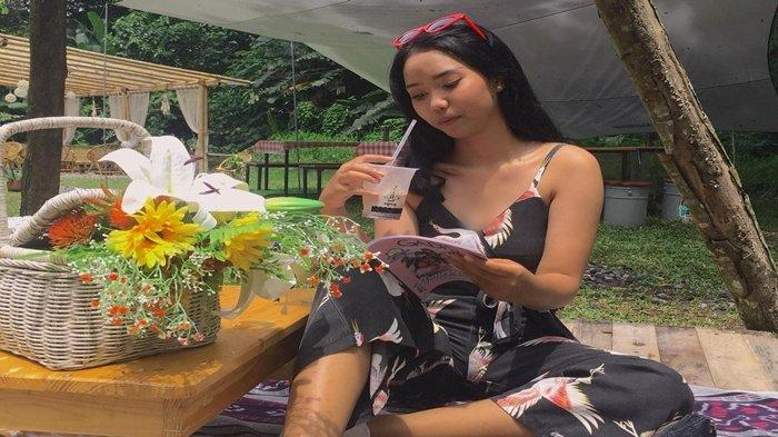 Gadis Cantik Ini Kini Sukses Jadi Model, Mengaku Dulu Sempat Dibully: 'Mulut Saya Tidak Miring Lagi'