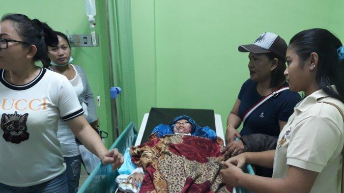 Biaya Operasi Jesica Manonahas, Anak yang Dibakar Ibunya, Dibantu Dinas P3A Sulut