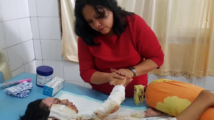 Bocah 9 Tahun di Sangihe Dibakar Ibunya, 85 Persen Tubuhnya Mengenaskan