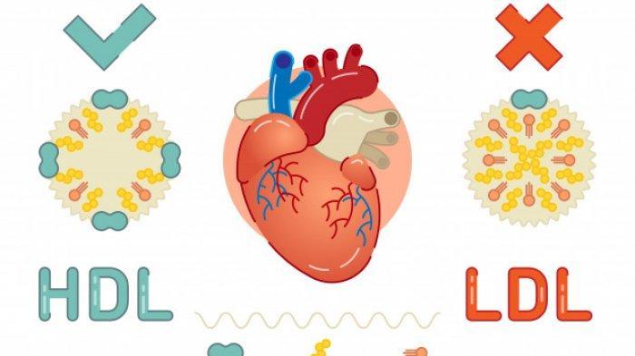 Apa Itu Kolestrol Baik? Sebutan Kebanyakan Orang Merujuk Kolesterol High-density Lipoprotein