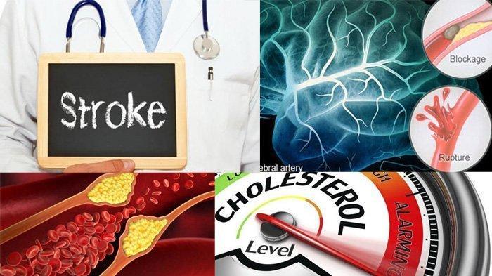 Cara Turunkan Kadar Kolesterol, Ada Lima Cara, Simak Penjelasannya