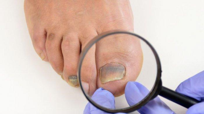 Kuku kaki berwarna ungu karena subungual hematoma(Manuel Faba Ortega)