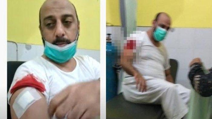 Syekh Ali Jaber Ditusuk saat Berdakwah, Pisau Sampai Patah: ''Saya Sendiri yang Mencabutnya''