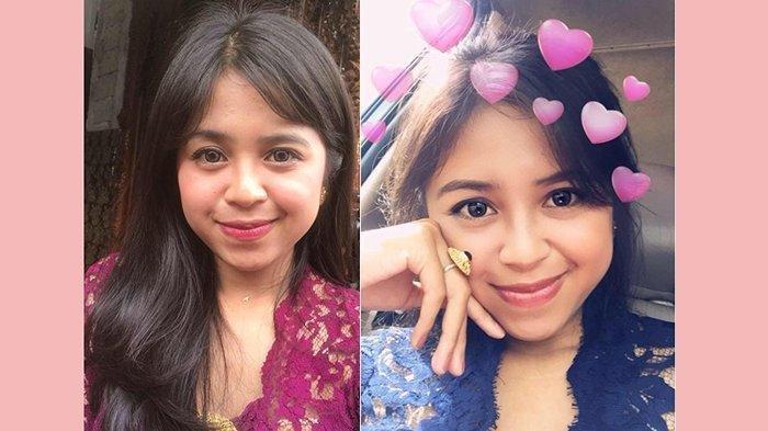 Mahasiswi Undiksha Tewas Dibunuh Kodok Pacarnya, Ternyata Sudah Pacaran Sejak SMP & Sering Dianiaya